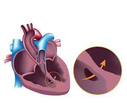 jantung-bocor